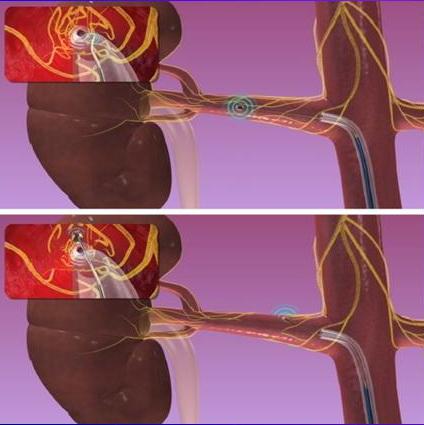 Через катетер Symplicity в 4-6 точек внутри каждой почечной артерии подаются ВЧ-импульсы, которые должны разрушить нервы и снизить артериальное давление.